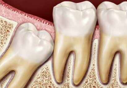 کشیدن دندان عقل به افزایش حس چشایی کمک میکند